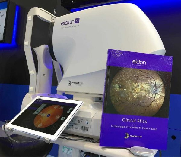 eidon retinal scan