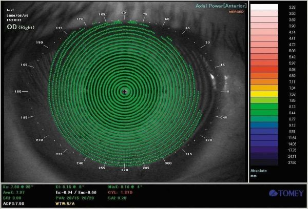 Tomey TMS-4 Corneal Topographer System